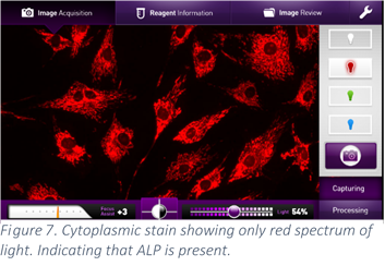 Cytoplasmic stain showing only red spectrum of light. Indicating that ALP is present.