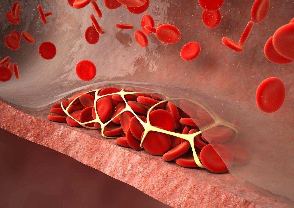 pulmonary-thromboembolism-and-immune-mediated-hemolytic-anemia-imha